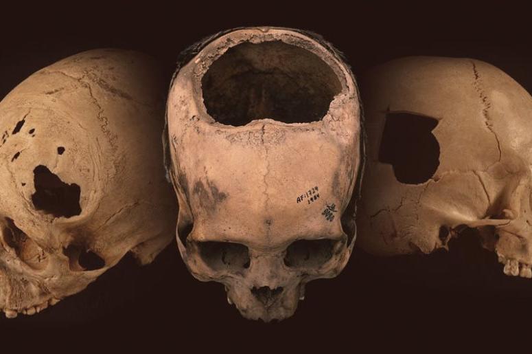 Древние инки проводили операции на черепе лучше, чем хирурги XIX века